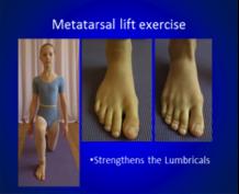 Metatarsal lift